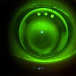Spezial-Kontaktlinse bei Keratokonus mit Ventilationsbohrungen