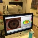 Oculus Keratograph 5 Hornhautvermessung